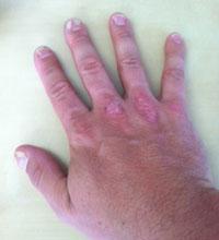 mustela dermatita atopica imagini de primavara